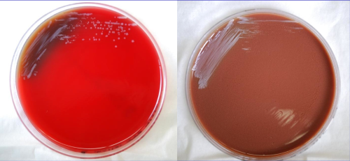 Burkholderia mallei on blood & chocolate agar plates. CDC Public Health Image Library. Public Domain.