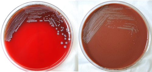 Yersinia pestis on blood agar plate (left) and chocolate agar plate (right). Source: CDC Public Health Image Library. Common Domain.