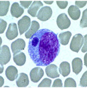 Monocyte infected with Ehrlichia. Photo Credit: CDC